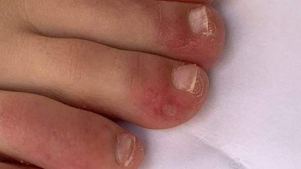 "Maldon and Burnham Standard: ""Covid toe"" is a rash that can look like chilblains. Credit: COVID-PIEL STUDY"