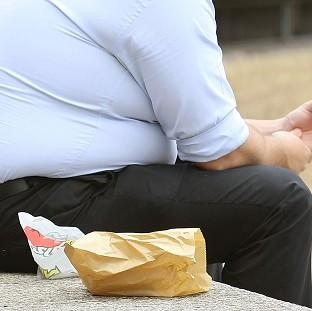 The Royal College of Physicians warned healthcare provisions for obesity are 'poorly developed'