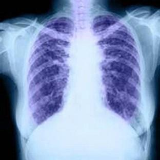 About 85% of patients with chronic obstructive pulmonary disorder could have been diagnosed years earlier, a study found